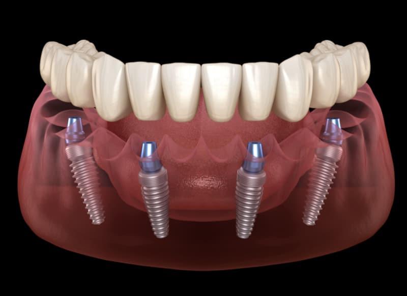 Zahnimplantat für einen festen Biss | Zahnzentrum Zähringen